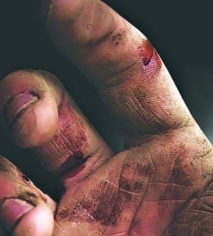 Необходимост от защитни ръкавици